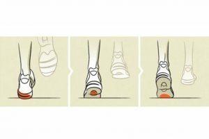 Tipo de pisada según desgaste (supinadora o pisada hacia adentro)